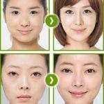 Cần chú ý gì trước khi phẫu thuật nâng mũi?