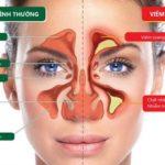 Hé lộ thông tin về các Cách thu gọn cánh mũi không cần phẫu thuật phổ biến nhất hiện nay