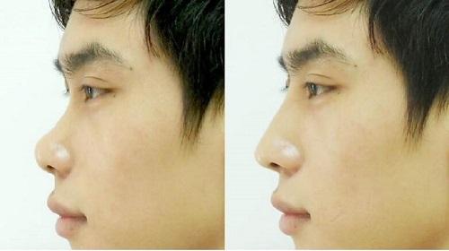 mũi ngắn tướng số