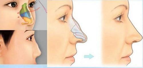 phụ nữ mũi gồ