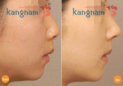 Kẹp nâng mũi có tác dụng không? 5