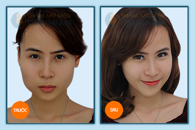 Hinh-anh-got-mat-v-line21