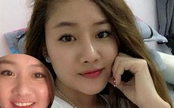 Kết quả phẫu thuật sửa mũi của Oanh Phương