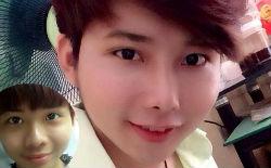 Kết quả phẫu thuật sửa mũi của Tạ Quang Lộc