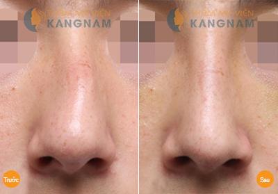 kết quả sửa mũi lệch