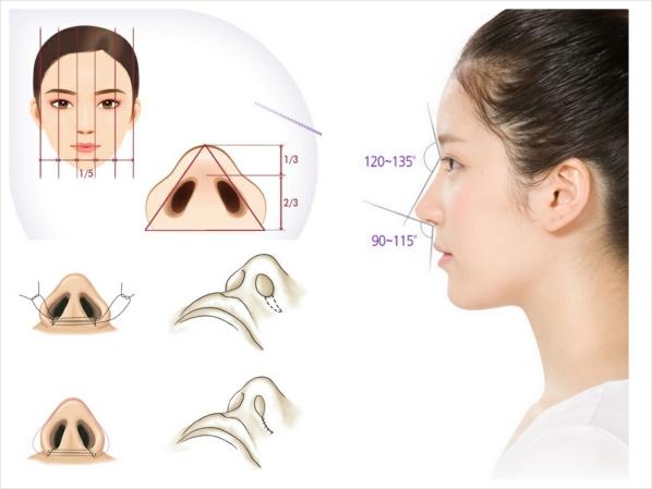 Thu gọn cánh mũi có bị khó thở? 1