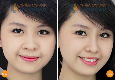 chi-tu-8-trieu-de-nang-mui-dep-nhu-tai-han-quoc2