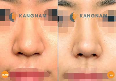 Có nên sửa đầu mũi tròn không? 1