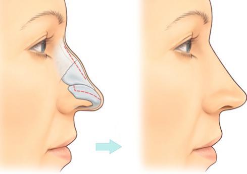 Có nên sửa mũi gồ bằng sửa mũi S line 3D? 1