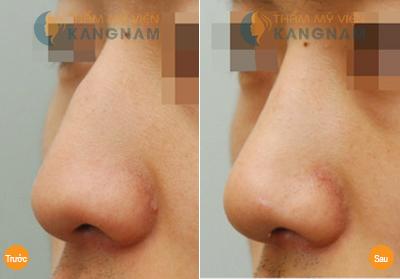 Có nên sửa mũi gồ bằng sửa mũi S line 3D? 2