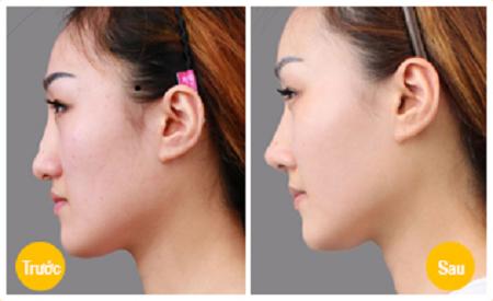 Có nên sửa mũi gồ bằng sửa mũi S line 3D? 3
