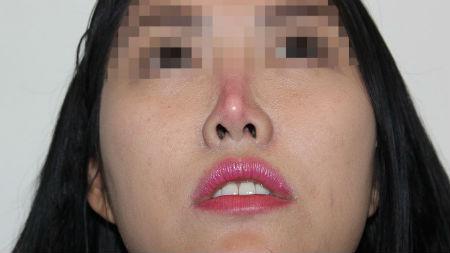 Đầu mũi bị đỏ sau khi nâng mũi phải làm sao?0