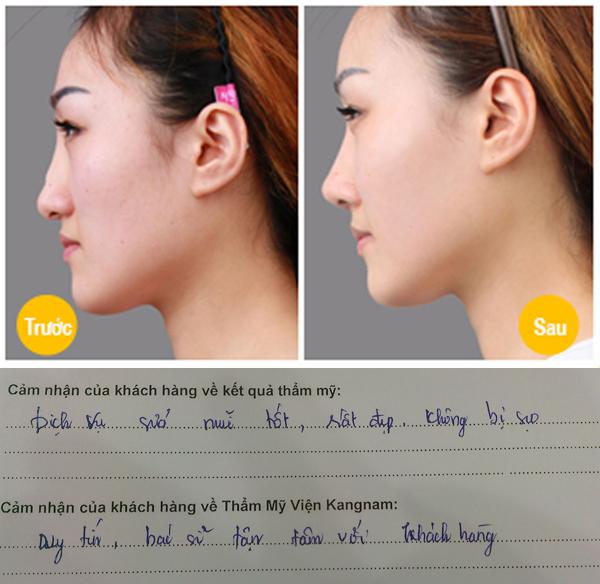 Sửa mũi S line bao lâu thì lành? 3