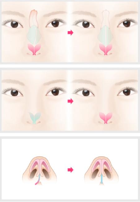 Chỉnh sửa sống mũi bị lệch
