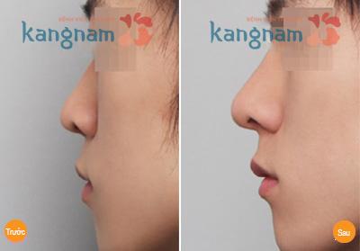 Giải đáp: Nâng mũi radies có tốt không?54