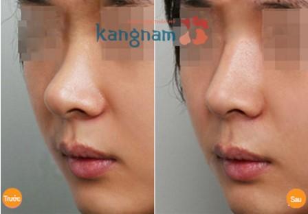 Phẫu thuật nâng mũi có phải làm lại không