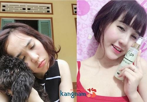 nang-mui-bang-sun-nhan-tao-co-tot-khong 43
