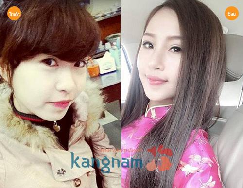 nang-mui-bang-sun-nhan-tao-co-tot-khong98