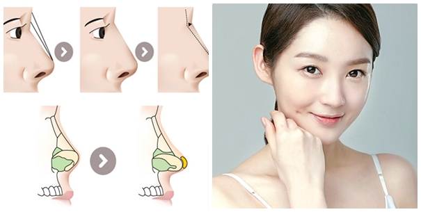 Ngăn chặn 95% tình trạng bóng đỏ đầu mũi, không lộ sống mũi