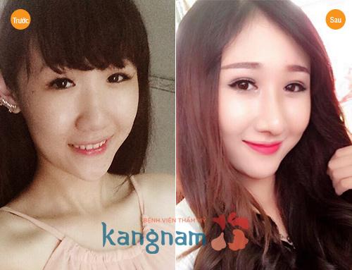 Bệnh viện thẩm mỹ Kangnam thực hiện thành công >10000 ca nâng mũi