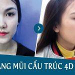 Video tái khám nâng mũi cấu trúc 4D sau 1 tháng