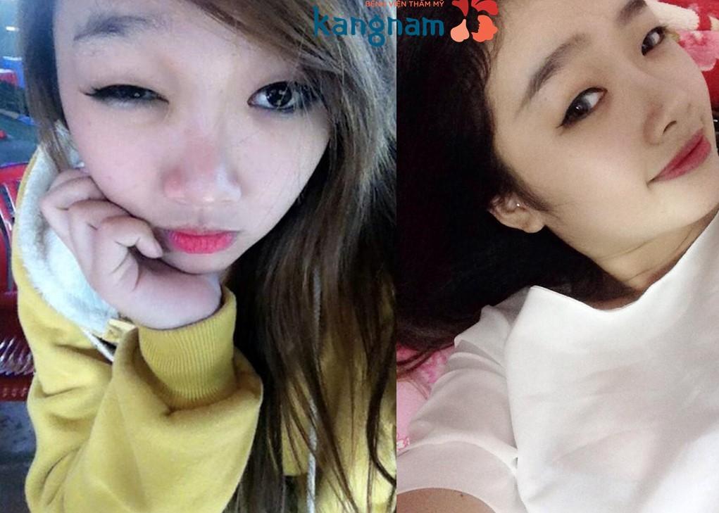Nâng mũi S line toàn diện - Nâng mũi Kangnam's Perfect S line