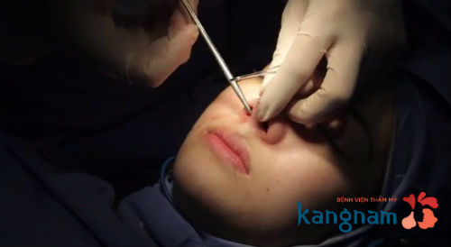 Thu gọn cánh mũi có đau không và có ảnh hưởng gì không?8