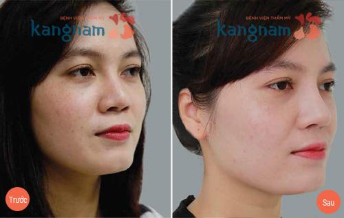Phẫu thuật nâng mũi có tháo ra được không?