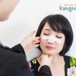 Nâng mũi Sline 4D được bao lâu? – Nhận định từ chuyên gia