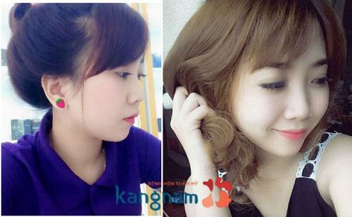 nang-sua-mui-o-tham-my-vien-kangnam-co-tot-khong 5