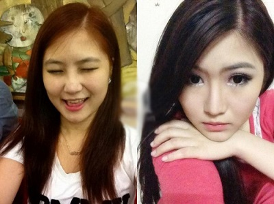 Mỹ nhân Việt trước và sau khi nâng mũi đẹp bất ngờ