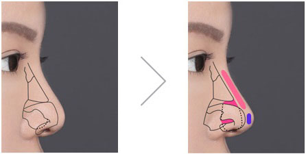 chỉnh sửa mũi hếch