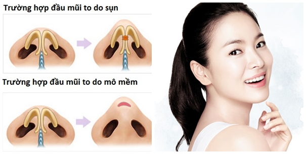 Có nên sửa đầu mũi tròn không? 3