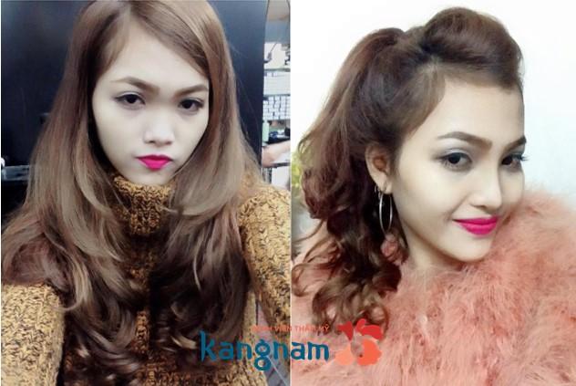 Thùy Trang trước và sau nâng mũi bọc sụn tại Kangnam