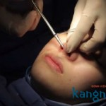 Phẫu thuật nâng mũi mất bao lâu?