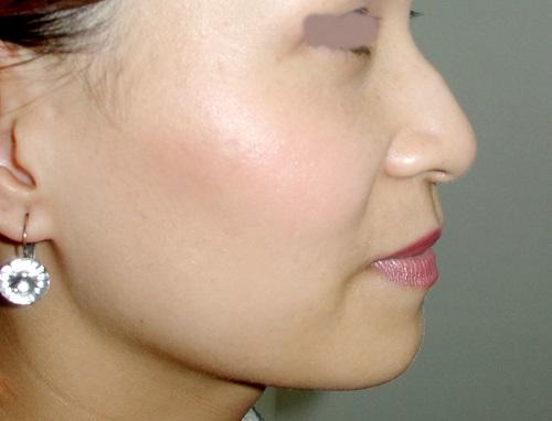 Sửa mũi gồ được thực hiện như thế nào?