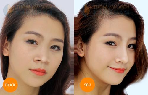 Trước và sau khi sửa mũi tại kangnam