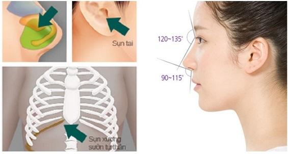 Sửa mũi S line bao lâu thì lành? 1