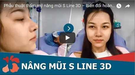 Sửa mũi S line là gi 3