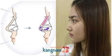 Sửa mũi S line là gì? Ưu điểm nổi bật của sửa mũi Sline 3D là gì?