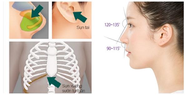 Sửa mũi sụn tự thân hay sụn nhân tạo? 1