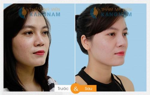 Sửa mũi ở đâu đẹp nhất TPHCM? 3