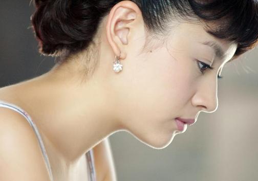 Thu gọn cánh mũi tại Hà Nội ở đâu đẹp và an toàn? 1