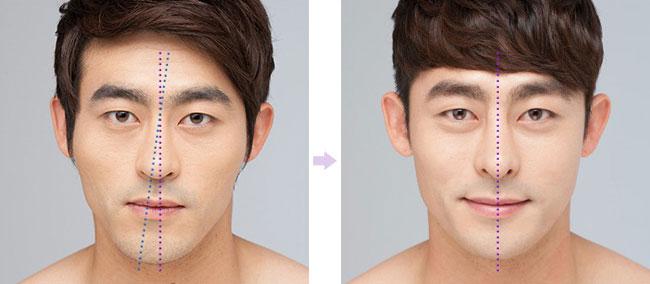 Lệch, vẹo vách ngăn mũi có cần phẫu thuật hay không? 14