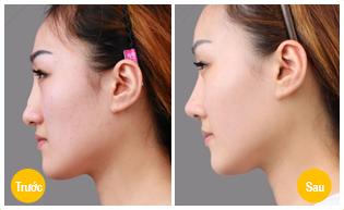 Vì sao Kangnam được nhiều người tin tưởng sửa mũi hỏng sau nâng?